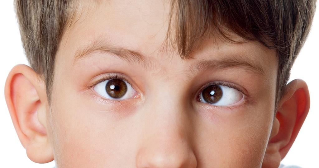 Амблиопия у детей: что это такое и как лечится