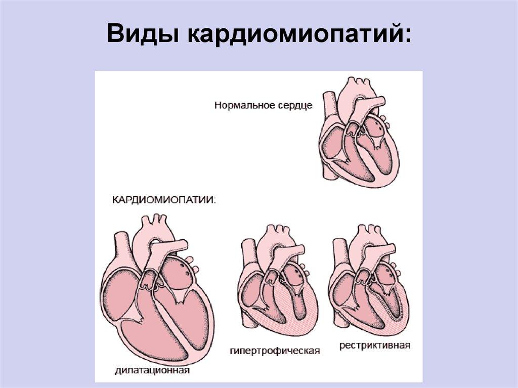 Дилатационная кардиомиопатия — симптомы, лечение и прогноз