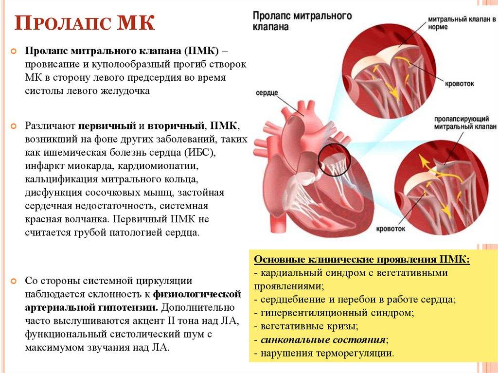 Пролапс митрального канала (пмк) 1 степени - что это такое, признаки, как вылечить?