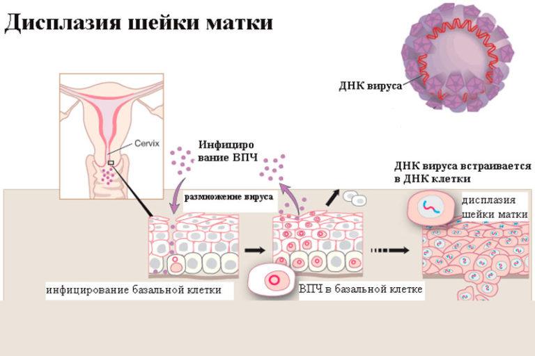 Дисплазия шейки матки: что это такое