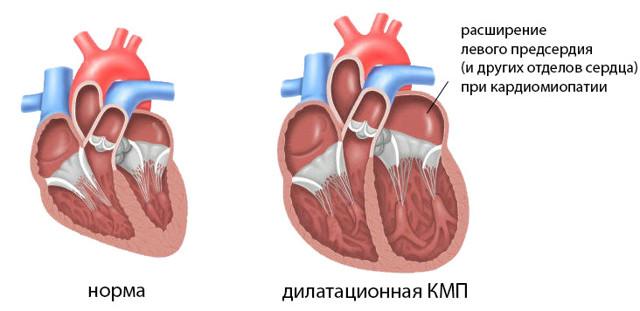 Дилатация полости левого предсердия, правых и левых отделов сердца: что это такое