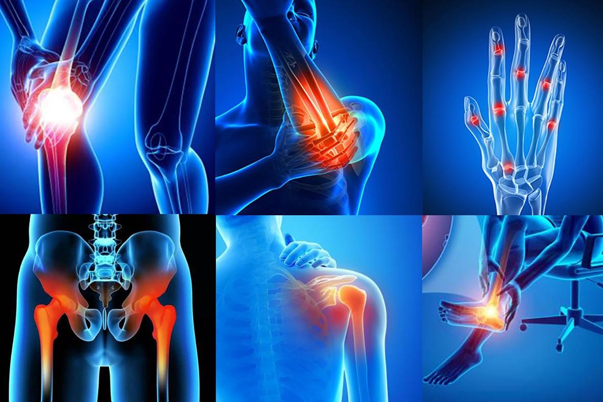 Артралгия суставов - что это такое, симптомы и лечение