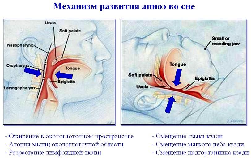 Ночное апноэ у взрослых симптомы и лечение | целебные свойства растений