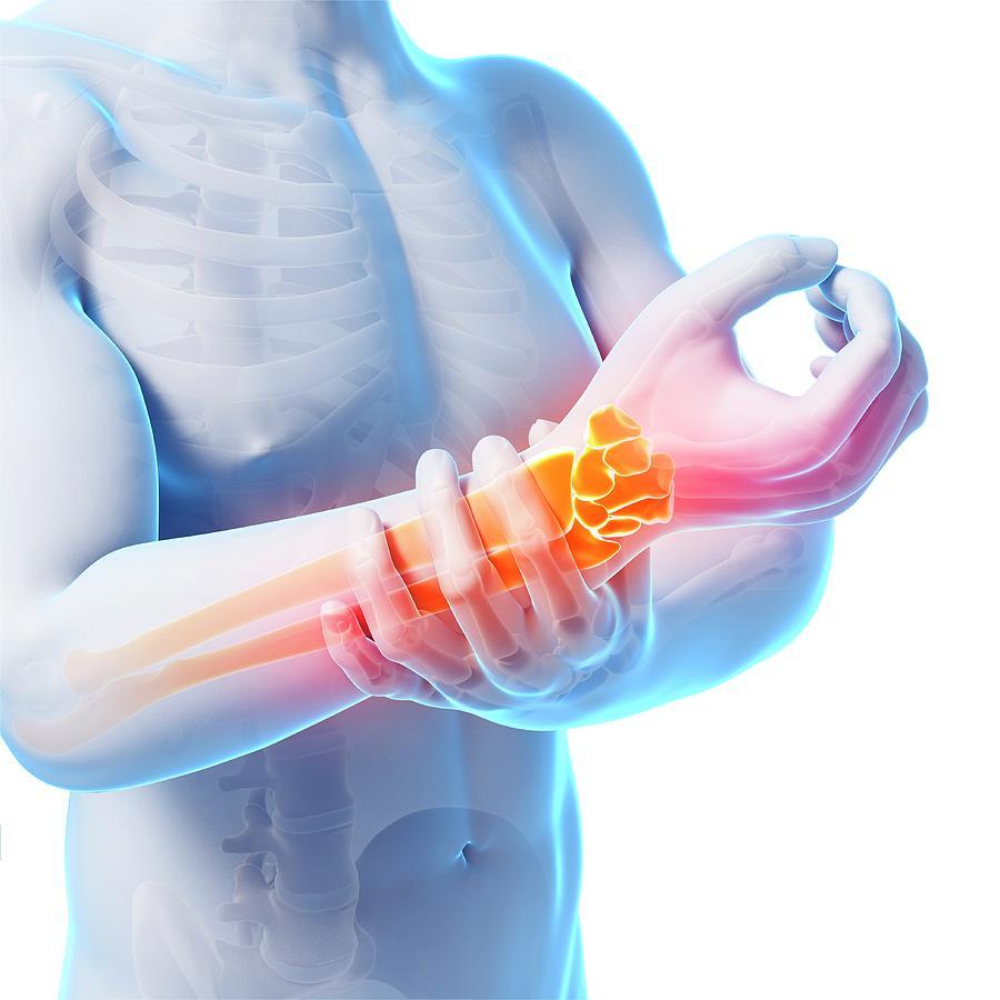 Артралгия: что это, причины, симптомы, лечение
