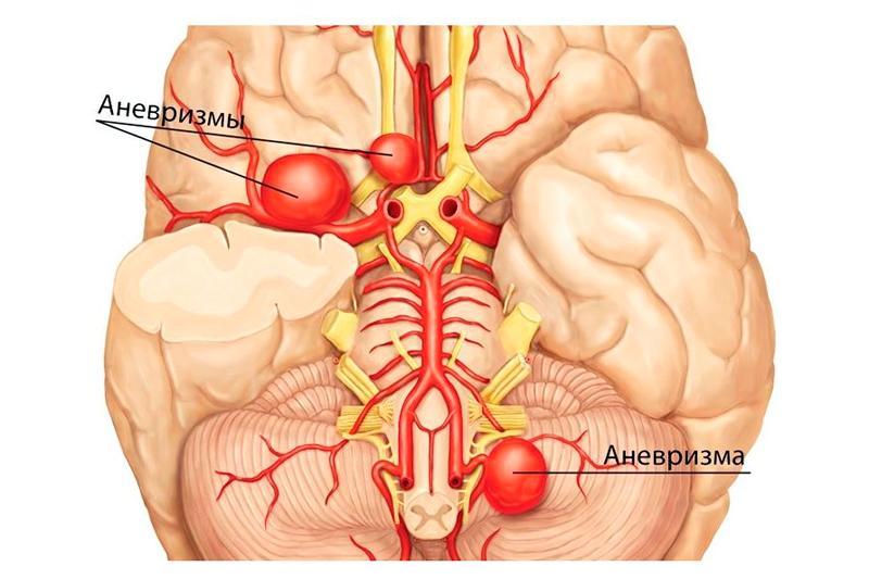 Последствия аневризмы: к чему готовиться пациентам после операции