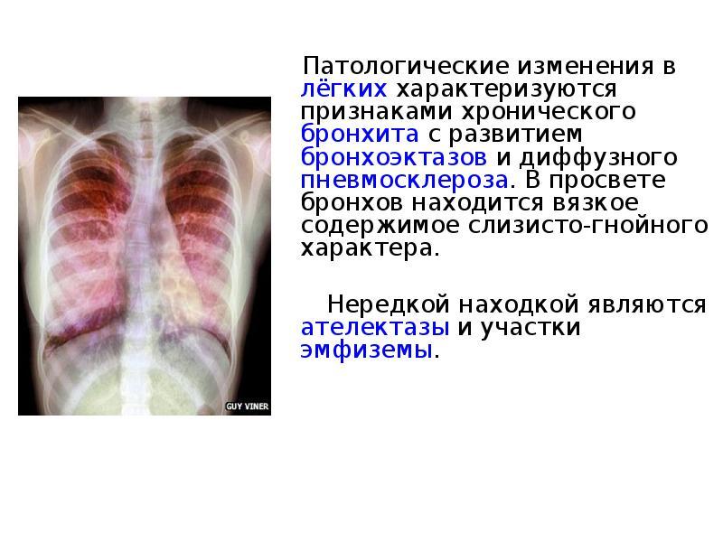 Пневмофиброз легких лечить народными средствами