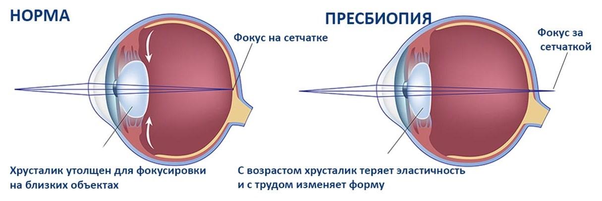 Пресбиопия: что это такое, лечение, причины, симптомы, диагностика, профилактика возрастной дальнозоркости, обоих глаз
