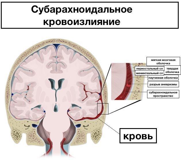 Факторы развития, симптоматика и методы терапии инсульта ствола головного мозга