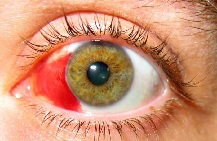 Склера глаза: описание, строение, функции склеры