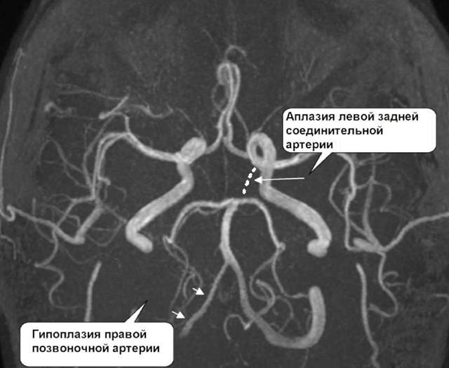 Гипоплазия артерий головного мозга: разновидности, причины, лечение.