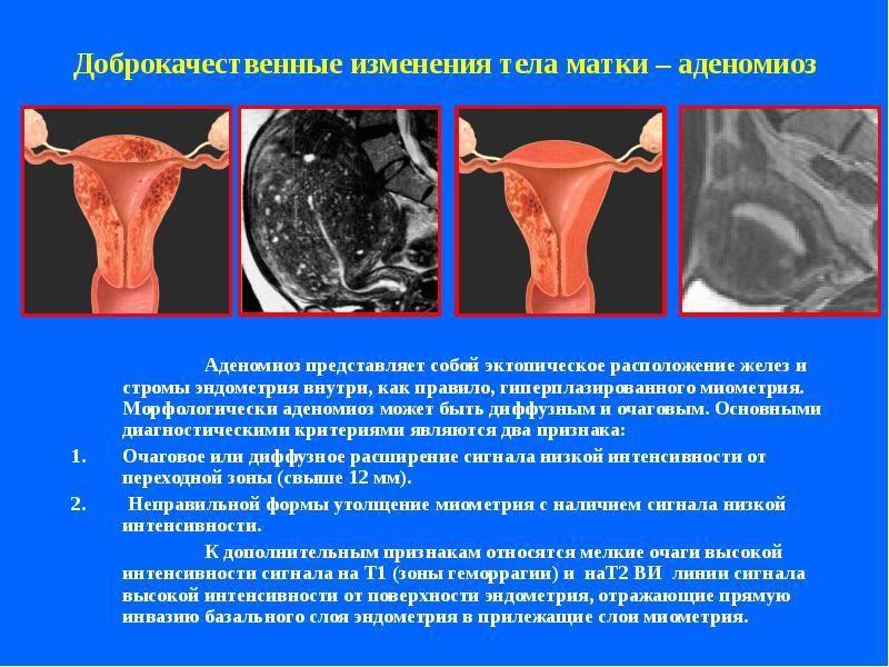 """""""эндометрит — что это такое? виды, основные симптомы и схемы лечения"""""""