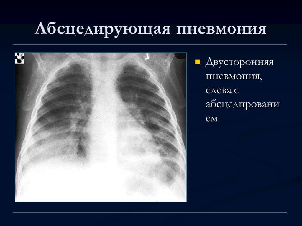 Полисегментарная пневмония: что это такое, симптомы и как лечить