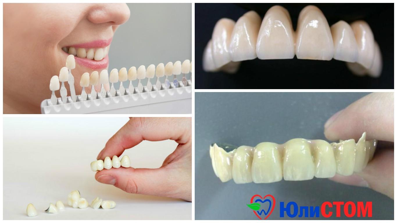 Зубные коронки - виды, изготовление и установка - lovedent