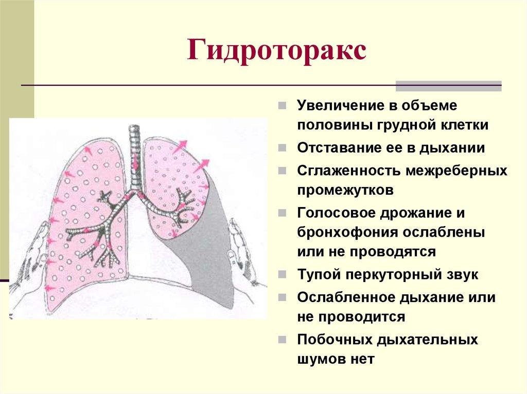 Что такое гидроторакс легких - орз нет!