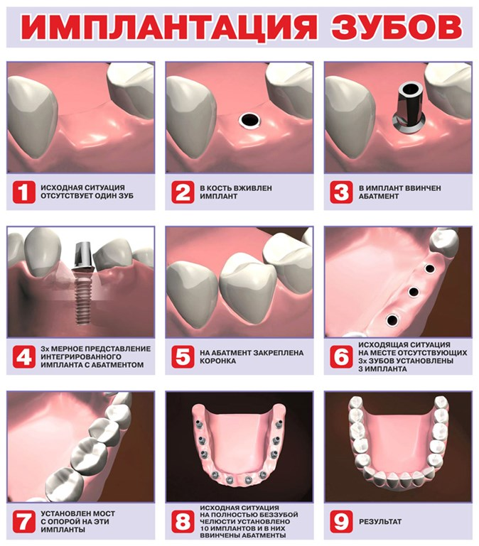 Что такое абатмент и как его применяют при имплантации в стоматологии?