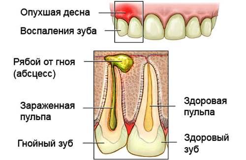 Флюс на десне: симптоматика, развитие болезни, советы и рекомендации стоматологов по лечению