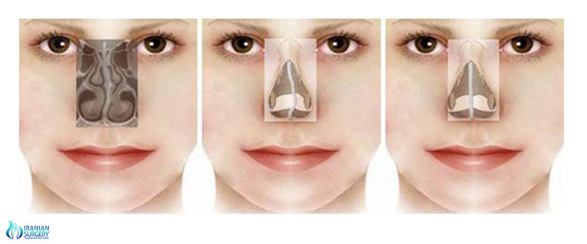 Септопластика носа: цели и показания, как проходит, виды, рекомендации пациентам