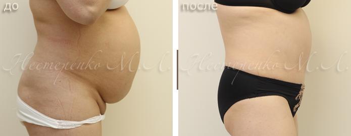 Диастаз после родов — мифы, реальность, восстановительные упражнения и варианты лечения (100 фото)