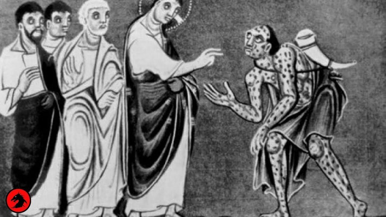 Проказа в средневековье: проклятие святого лазаря   вирусы и эпидемии   багира гуру