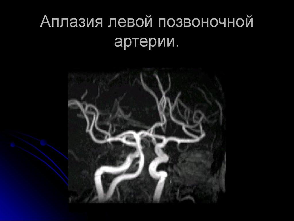 Гипоплазия правой и левой позвоночной артерии: причины, симптомы и лечение