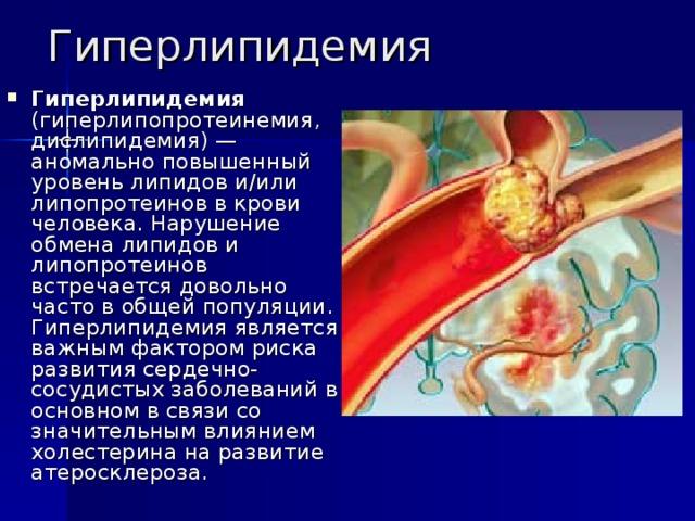 Ишемическая болезнь сердца — терапия дислипидемий
