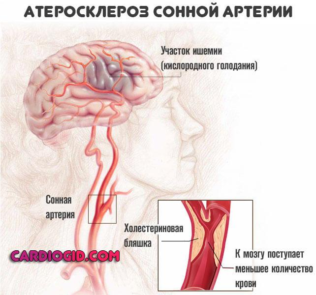 Брахиоцефальные артерии (бца): анатомия и диагностика