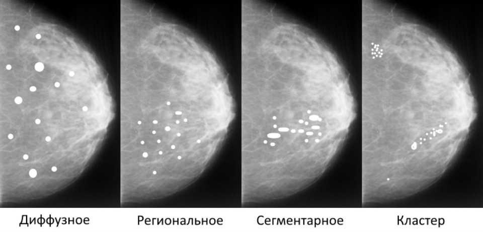 Кальцинаты в молочной железе: что это такое, диагностика и лечение