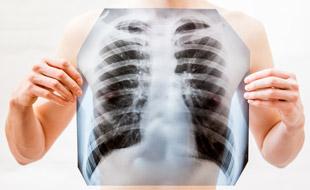 Что такое туберкулома легких, заразна ли она?