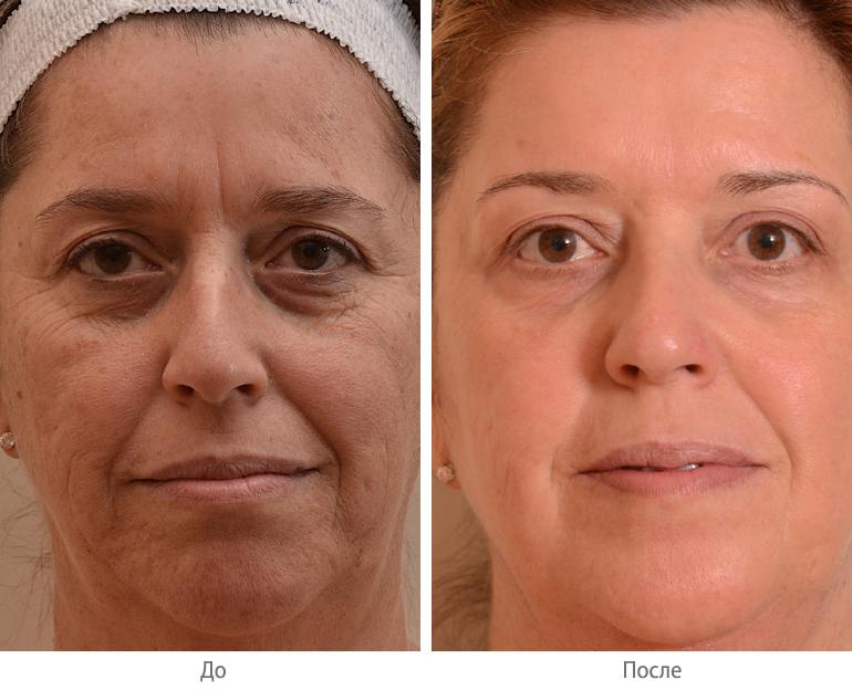 Биоревитализация лица * отзывы с фото до и после, эффект, последствия, что это такое