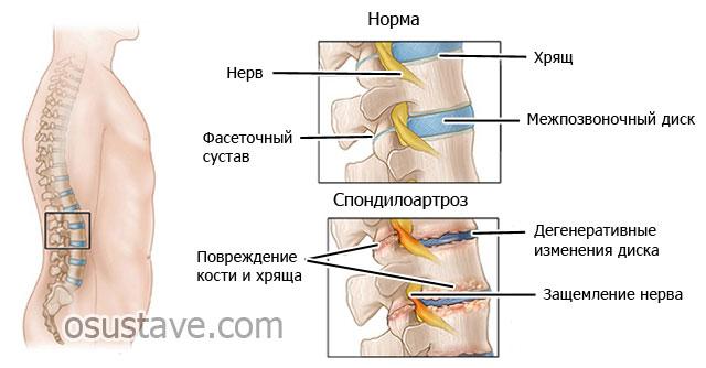Спондилоартроз 2 степени поясничного отдела позвоночника: лечение болезни