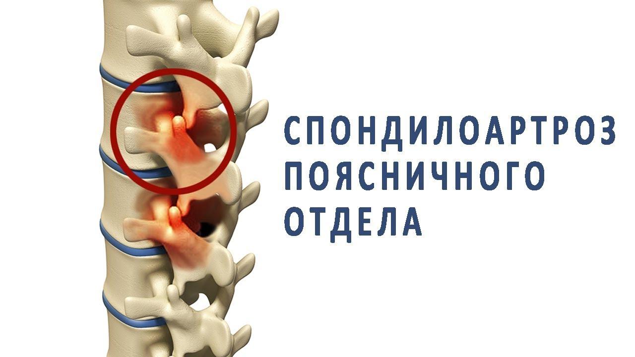 Спондилоартроз поясничного отдела позвоночника: причины развития, методы лечения