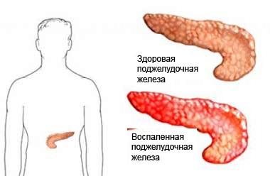 Где находится и как болит поджелудочная железа: как лечить, симптомы