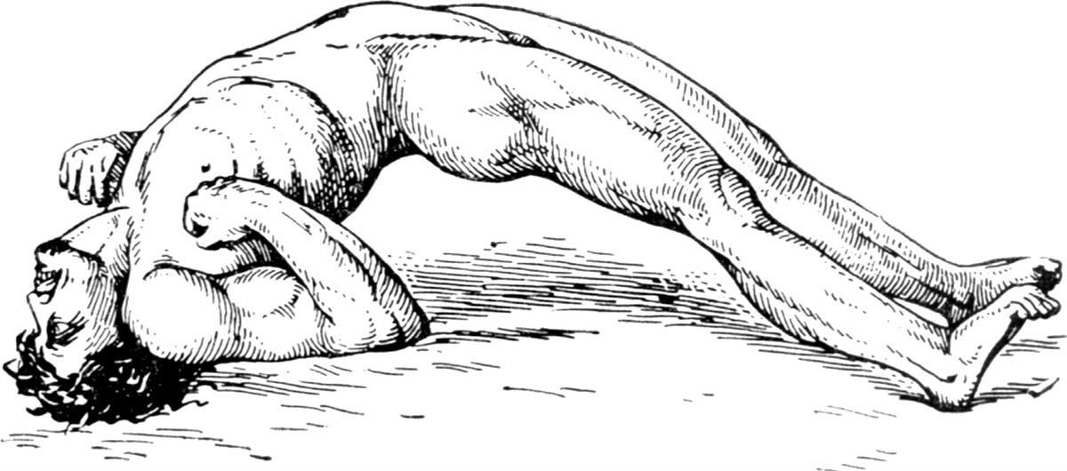 Конвульсии - это мышечные спазмы: причины, первая помощь и лечение :: syl.ru