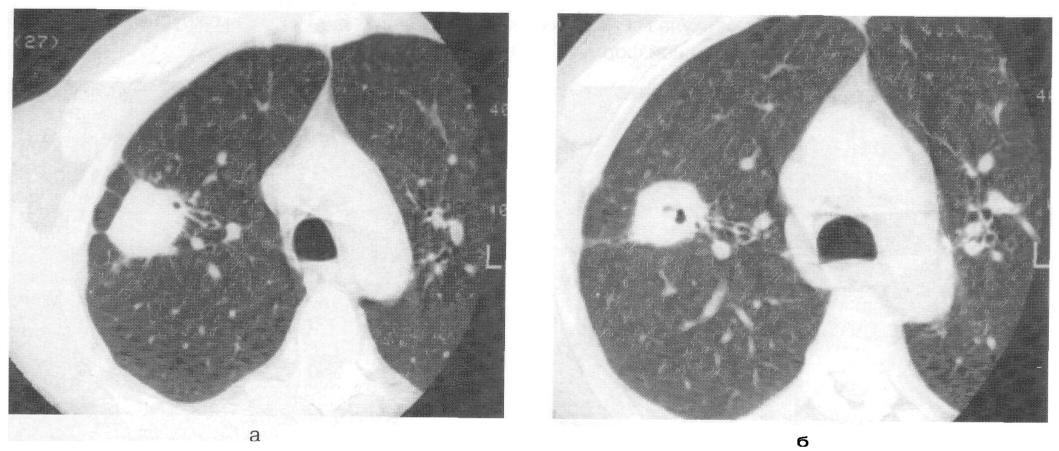 Кальцинаты в бронхах. кальцинаты в легких – что это значит? клиническая картина заболевания - лечение