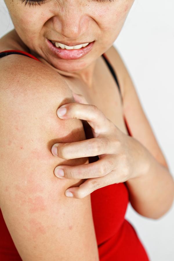 Зуд кожи: причины и лечение зуда, что делать, если чешется кожа – напоправку