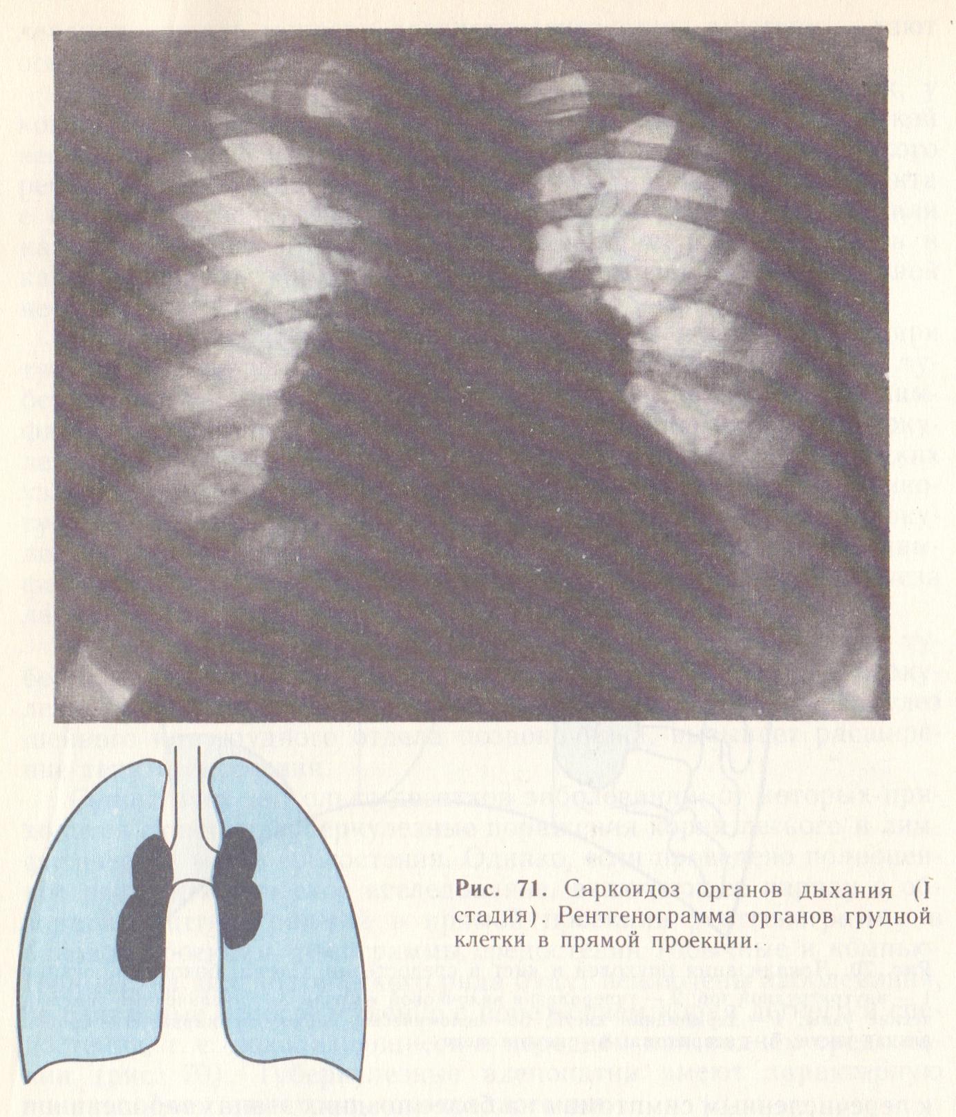 Все о медиастинальной лимфаденопатии средостения лёгких