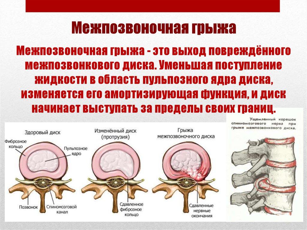 Циркулярная протрузия и грыжа межпозвоночного диска: что такое, отличия