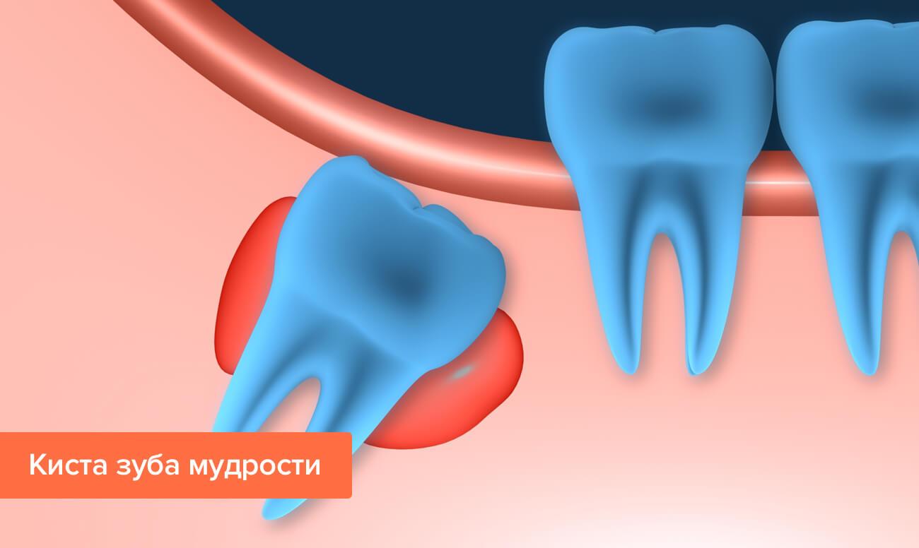 Как можно вылечить кисту зуба: методы лечения и удаления