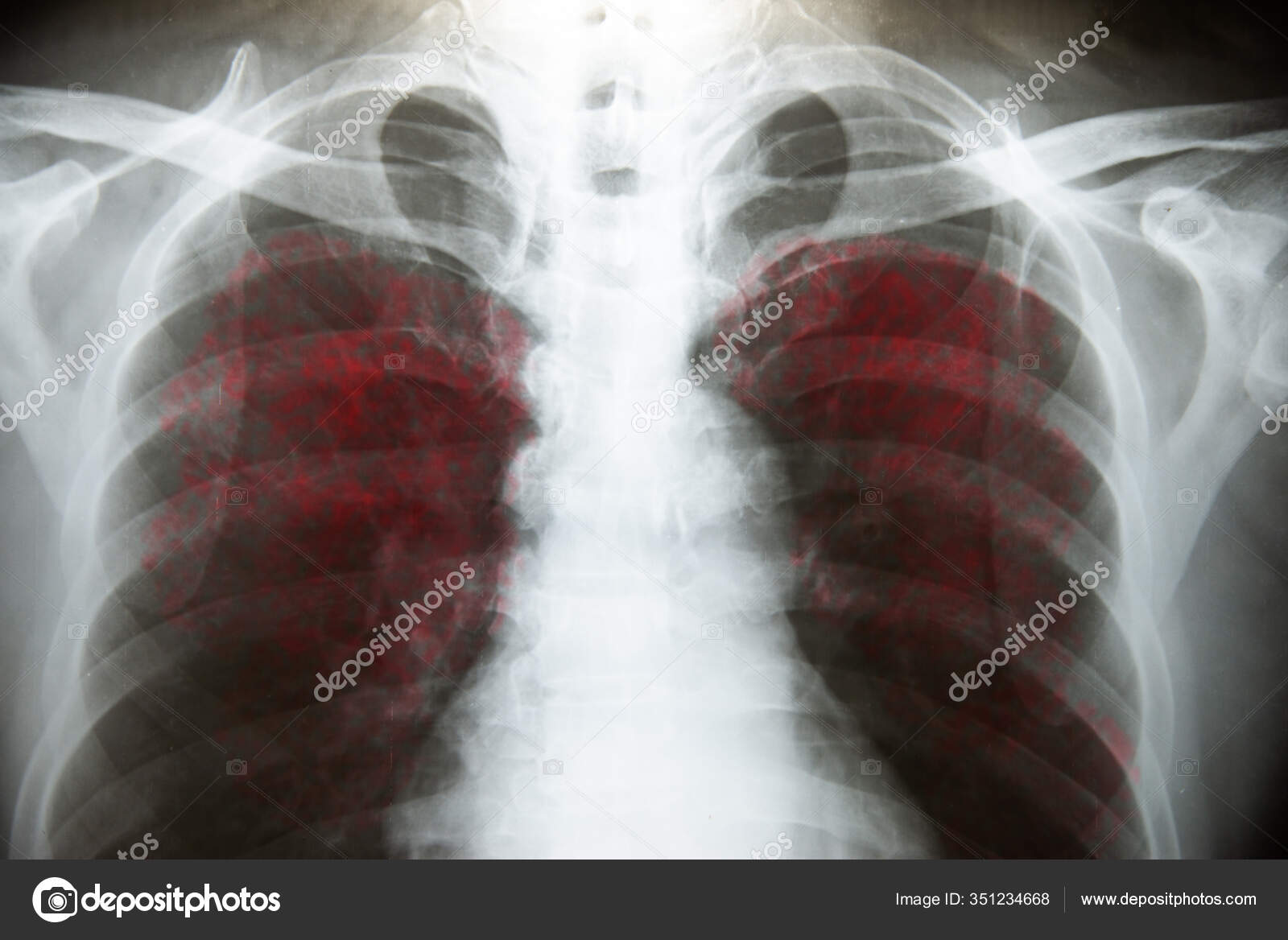 Боль в грудине посередине и комок в горле