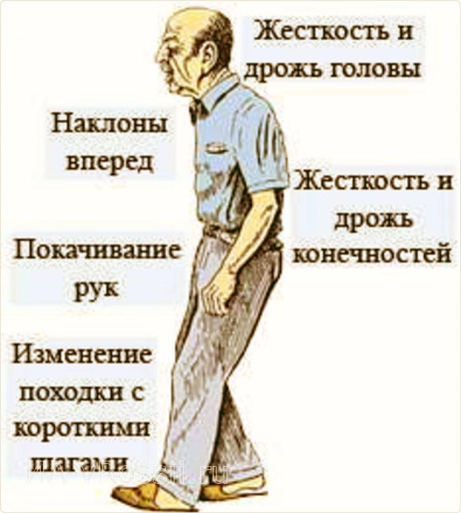 Болезнь паркинсона - симптомы и признаки, лечение, что это такое?