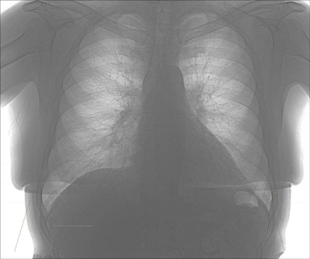 Боль в грудине посередине – в чём причина?всд