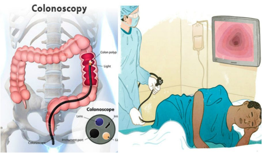 Как делают колоноскопию: суть обследования, техника проведения и сколько длится процедура