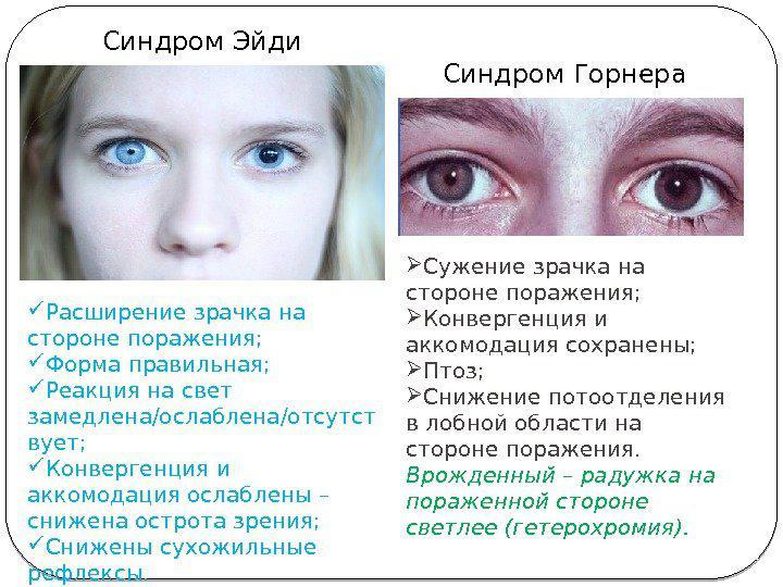 Анизокория - что это такое, причины и лечение