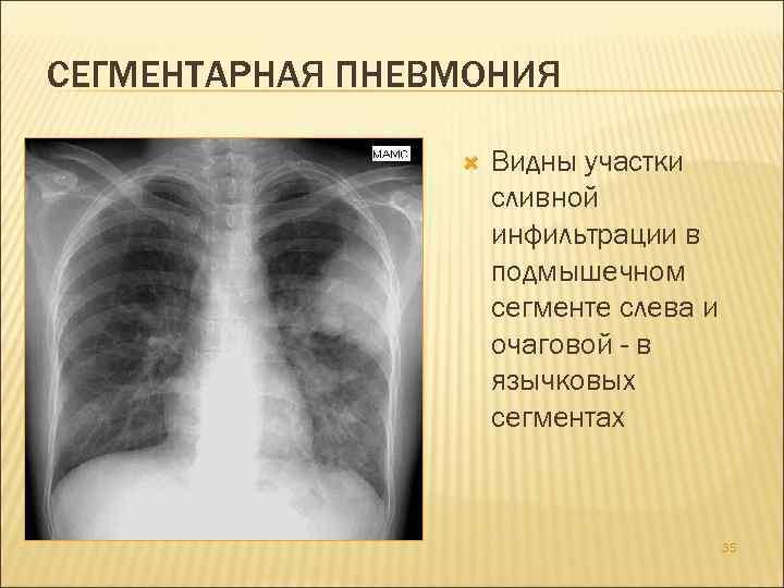 Полисегментарная пневмония: причины, симптомы, лечение