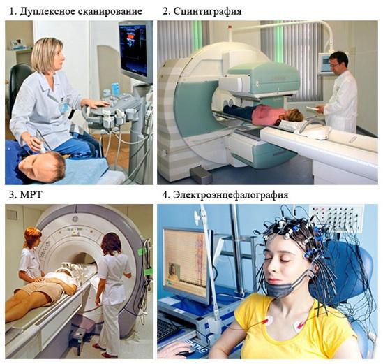Цереброваскулярная болезнь (цвб): симптомы, причины, последствия и лечение патологии