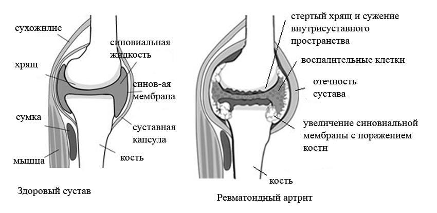 Ревматоидный артрит: симптомы, лечение и диагностика, причины возникновения, классификация
