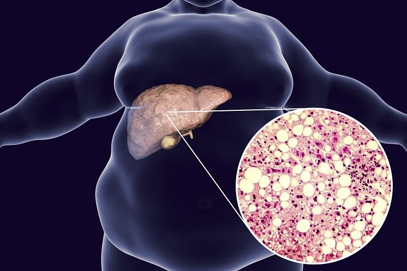 Жировой гепатоз печени: симптомы и лечение, диета при гепатозе