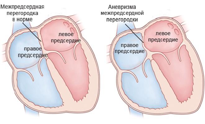 Что такое аневризма аорты сердца и когда нужна операция?