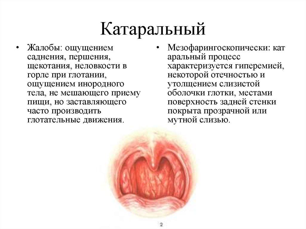 Эзофагит | симптомы | диагностика | лечение - docdoc.ru