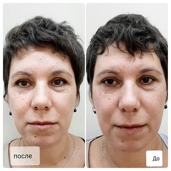 Лазерное омоложение лица – плюсы и минусы процедуры